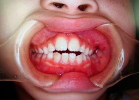 乳歯 欠け た